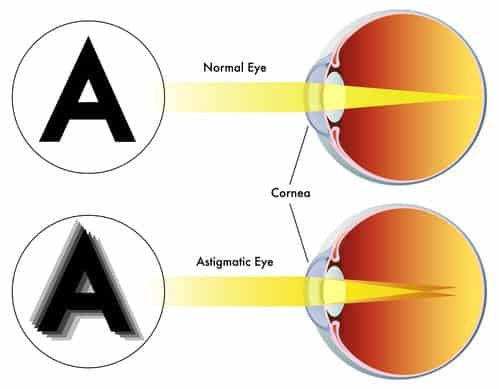 A diagram that illustrates how light astigmatism interferes with light refraction.