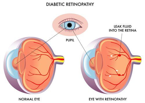 diagram of diabetic retinopathy showing a normal eye and an eye with retinopathy