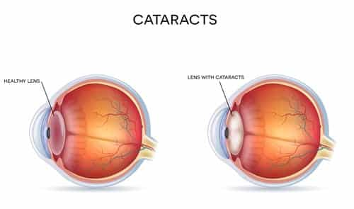A diagram cataracts and healthy eye.