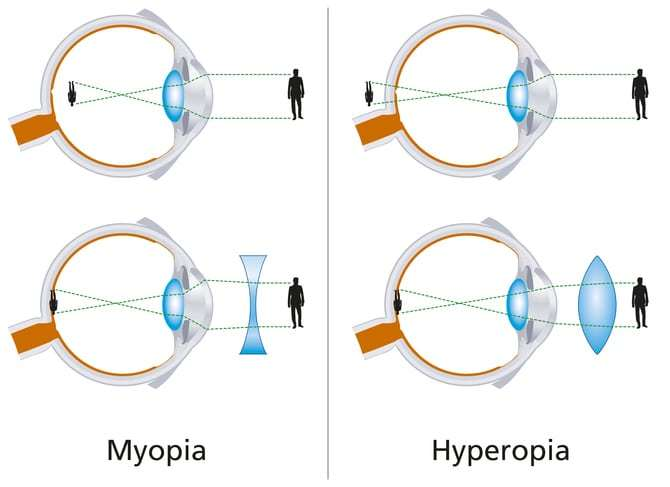 A diagram that shows that difference between myopia and hyperopia