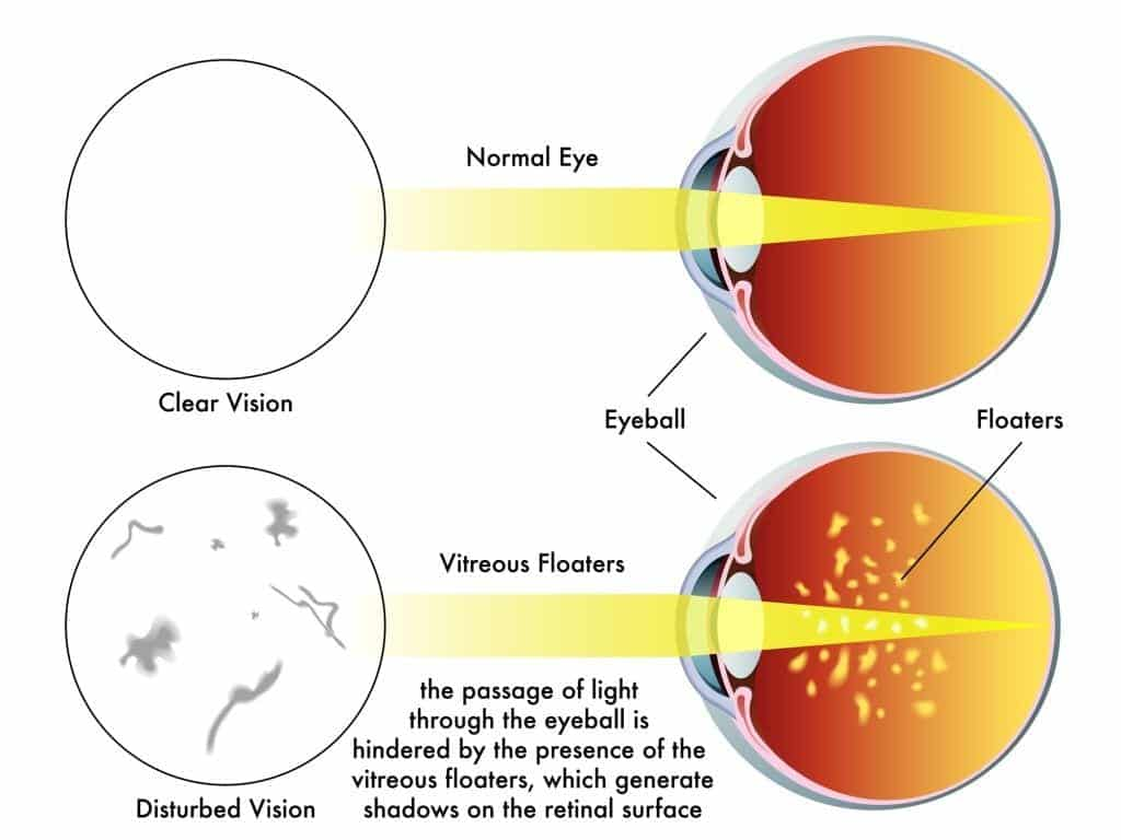 Diagram illustrating eye floaters, one drawing shows normal vision, the other shows spots in vision.