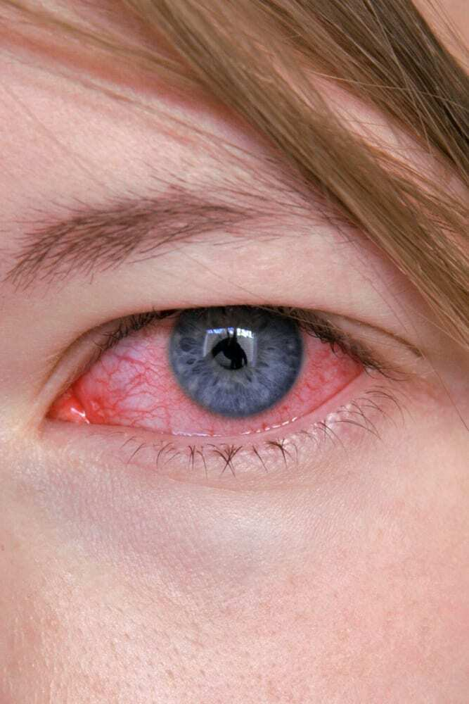 Close-up of pink eye, blue iris