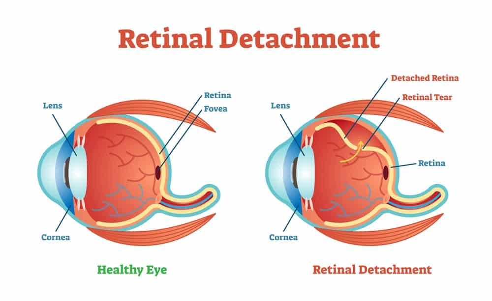 Diagram of a healthy eye and an eye with retinal detachment