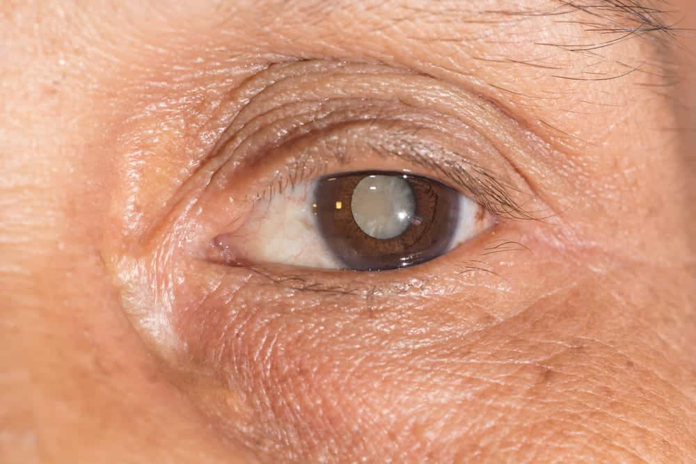 Close-up of eye with a cataract