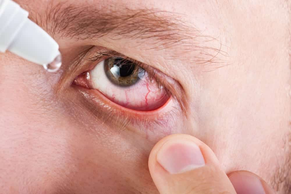 Close-up of man placing eye drops in dry eye