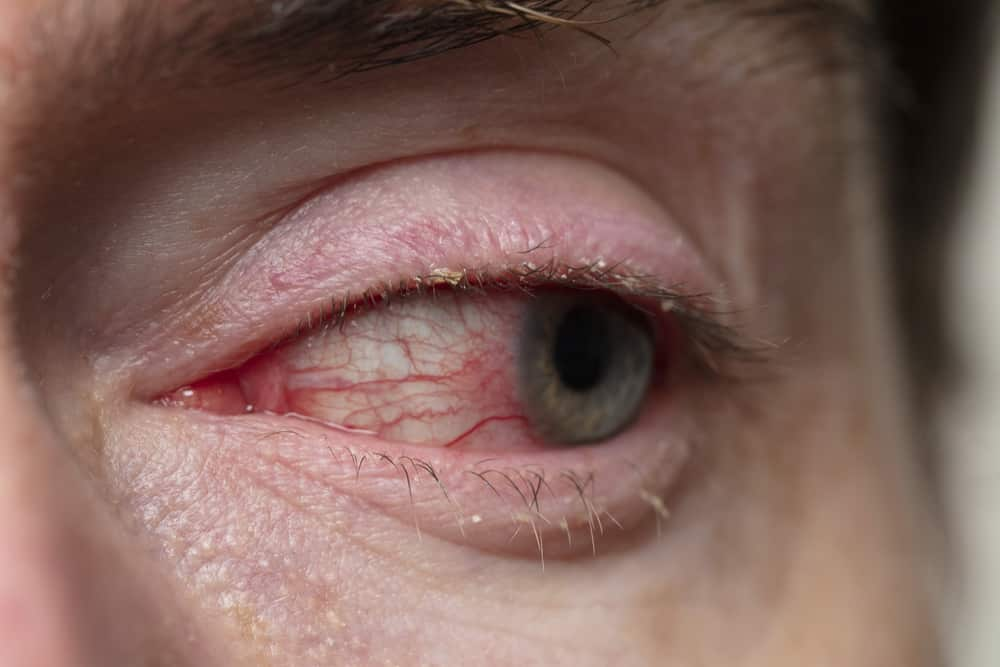 Close-up of eye with Blepharitis